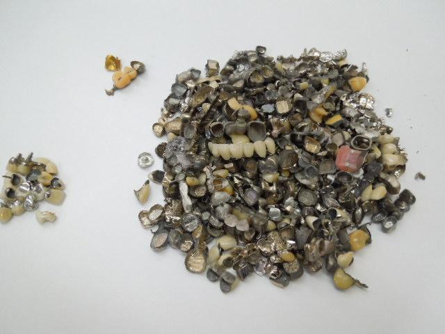 歯科金属屑・歯科スクラップ金属(撤去冠・除去冠)
